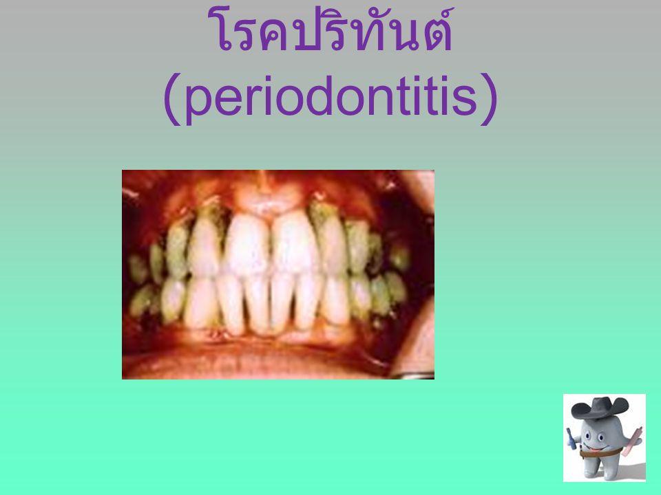 โรคปริทันต์ (periodontitis)