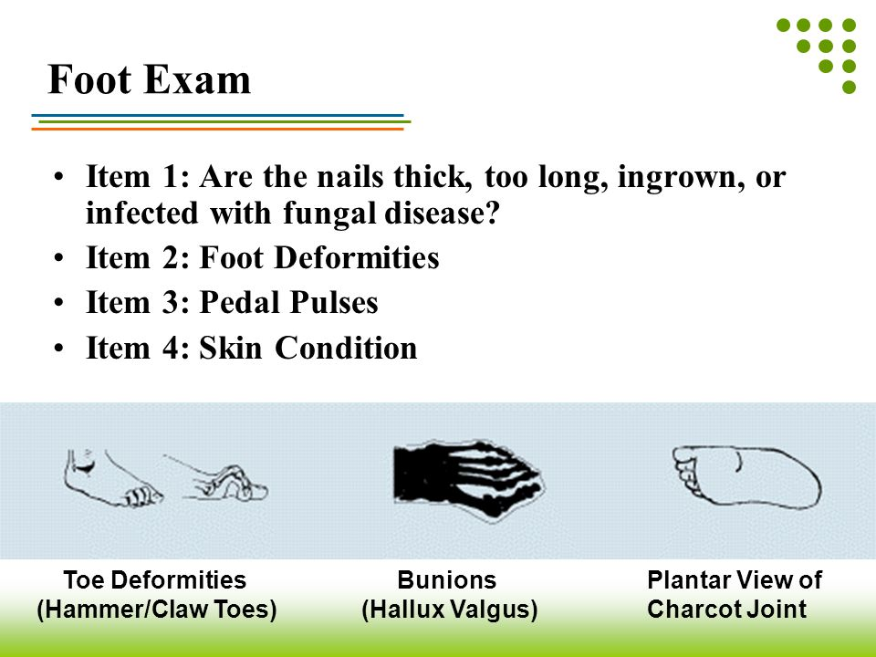 Foot Exam Item 1: Are the nails thick, too long, ingrown, or infected with fungal disease? Item 2: Foot Deformities Item 3: Pedal Pulses Item 4: Skin