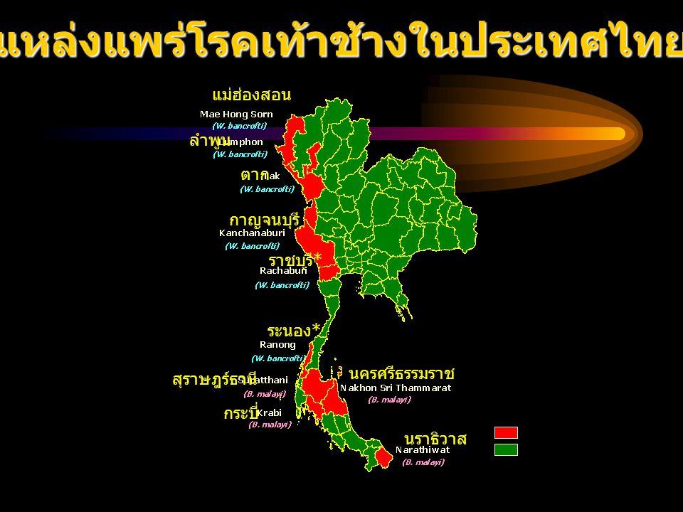 แหล่งแพร่โรคเท้าช้างในประเทศไทย Endemic area Non Endemic area แม่ฮ่องสอน ลำพูน ตาก กาญจนบุรี ราชบุรี * ระนอง * สุราษฎร์ธานี กระบี่ นครศรีธรรมราช นราธิ