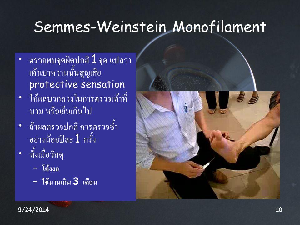 9/24/201410 Semmes-Weinstein Monofilament ตรวจพบจุดผิดปกติ 1 จุด แปลว่า เท้าเบาหวานนั้นสูญเสีย protective sensation ให้ผลบวกลวงในการตรวจเท้าที่ บวม หร