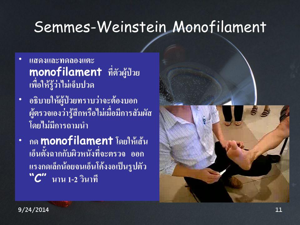 9/24/201411 Semmes-Weinstein Monofilament แสดงและทดลองแตะ monofilament ที่ตัวผู้ป่วย เพื่อให้รู้ว่าไม่เจ็บปวด อธิบายให้ผู้ป่วยทราบว่าจะต้องบอก ผู้ตรวจ