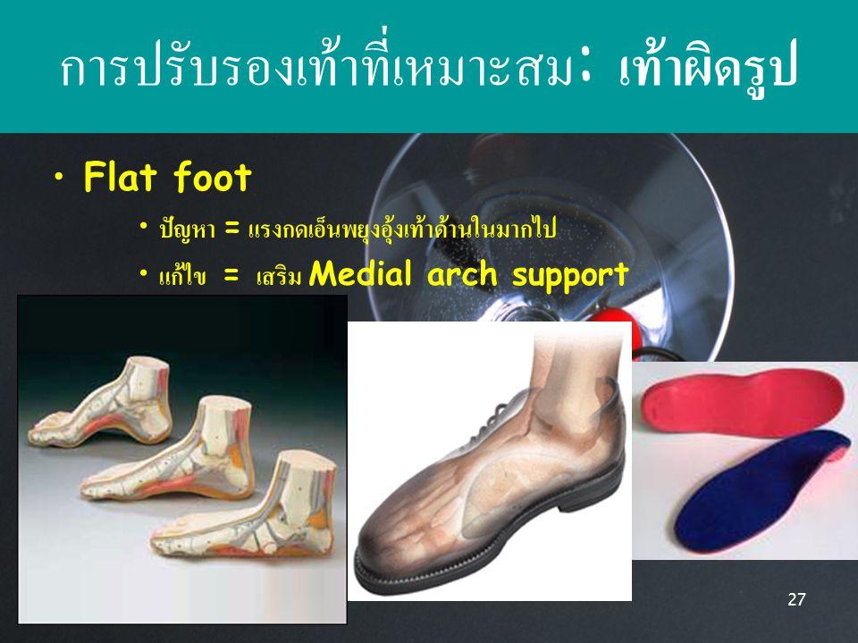 9/24/201427 การปรับรองเท้าที่เหมาะสม : เท้าผิดรูป Flat foot ปัญหา = แรงกดเอ็นพยุงอุ้งเท้าด้านในมากไป แก้ไข = เสริม Medial arch support