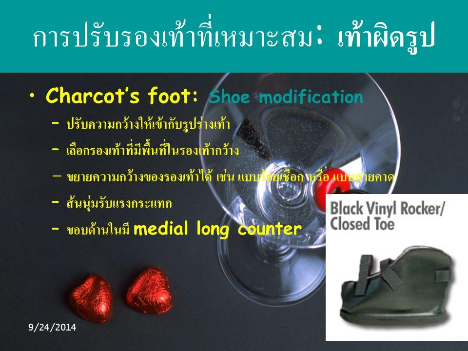 9/24/201429 การปรับรองเท้าที่เหมาะสม : เท้าผิดรูป Charcot's foot: Shoe modification – ปรับความกว้างให้เข้ากับรูปร่างเท้า – เลือกรองเท้าที่มีพื้นที่ในร