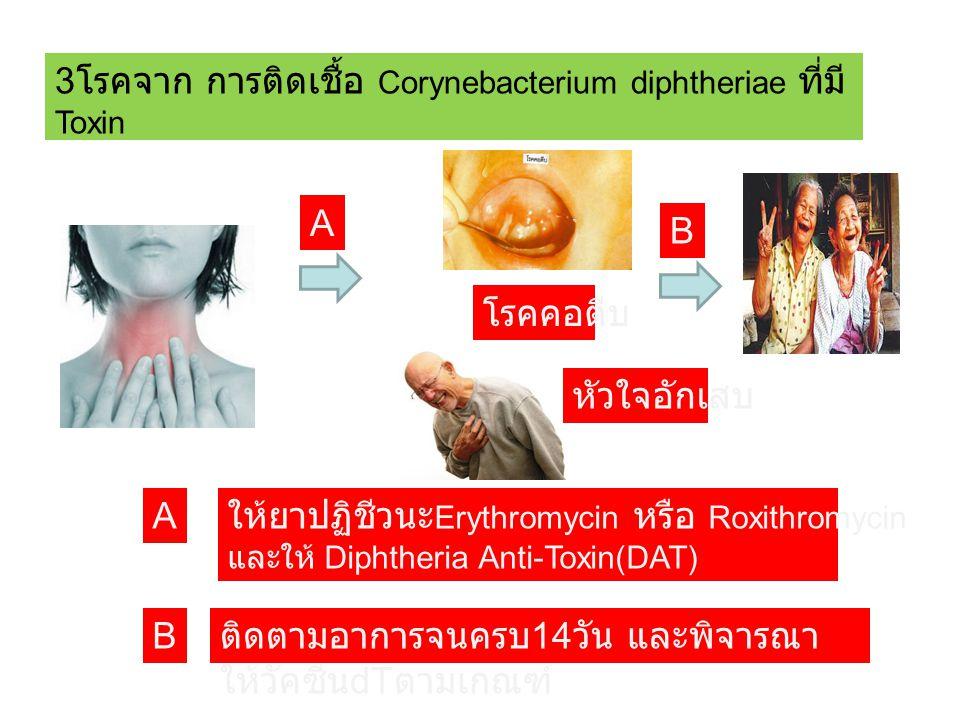 3 โรคจาก การติดเชื้อ Corynebacterium diphtheriae ที่มี Toxin โรคคอตีบ หัวใจอักเสบ B B A A ให้ยาปฏิชีวนะ Erythromycin หรือ Roxithromycin และให้ Diphtheria Anti-Toxin(DAT) ติดตามอาการจนครบ 14 วัน และพิจารณา ให้วัคซีน dT ตามเกณฑ์