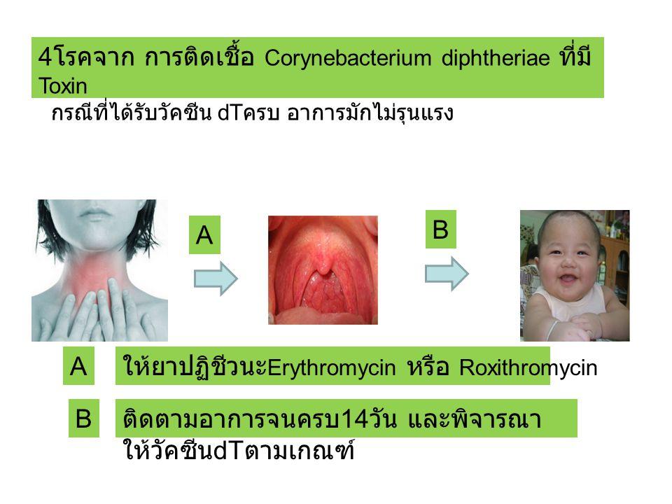 4 โรคจาก การติดเชื้อ Corynebacterium diphtheriae ที่มี Toxin กรณีที่ได้รับวัคซีน dT ครบ อาการมักไม่รุนแรง A ให้ยาปฏิชีวนะ Erythromycin หรือ Roxithromycin B ติดตามอาการจนครบ 14 วัน และพิจารณา ให้วัคซีน dT ตามเกณฑ์ A B