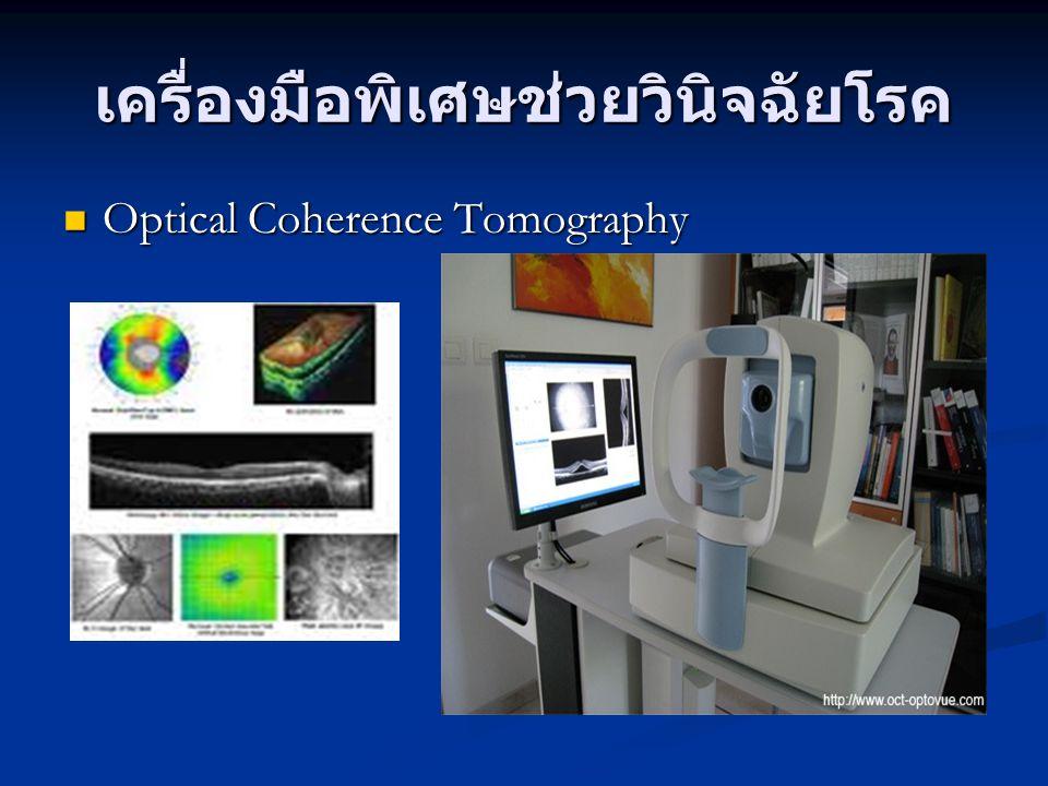 เครื่องมือพิเศษช่วยวินิจฉัยโรค Optical Coherence Tomography Optical Coherence Tomography