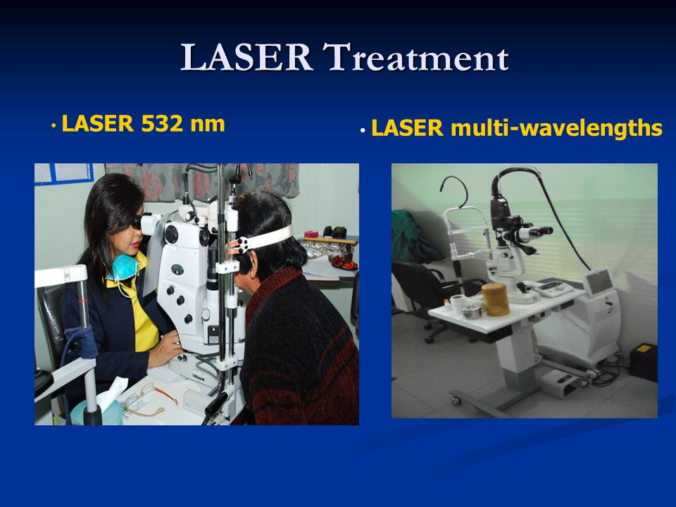 LASER Treatment LASER 532 nm LASER multi-wavelengths