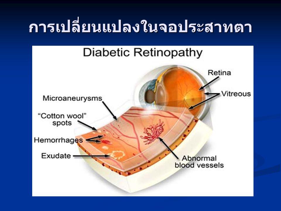 Vitrectomy and Endolaser