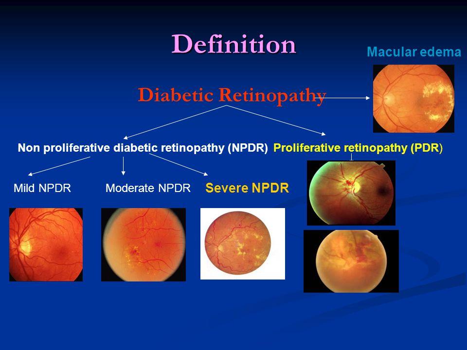 Definition Diabetic Retinopathy Mild NPDR Non proliferative diabetic retinopathy (NPDR) Proliferative retinopathy (PDR) Moderate NPDR Severe NPDR Macular edema