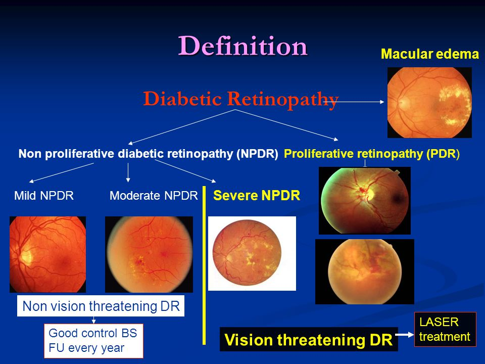 Definition Diabetic Retinopathy Mild NPDR Non proliferative diabetic retinopathy (NPDR) Proliferative retinopathy (PDR) Moderate NPDR Severe NPDR Macular edema Vision threatening DR Non vision threatening DR LASER treatment Good control BS FU every year
