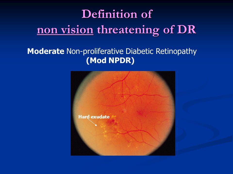 Definition of Vision Threatening Diabetic Retinopathy Severe Non-proliferative Diabetic Retinopathy ( severe NPDR) Vessel dilatation 2 Q Hemorrhage>20 in each quadrant of 4 Q Intraretina Microvascular Abnormality (IRMA) 1 Q Rule of 4:2:1