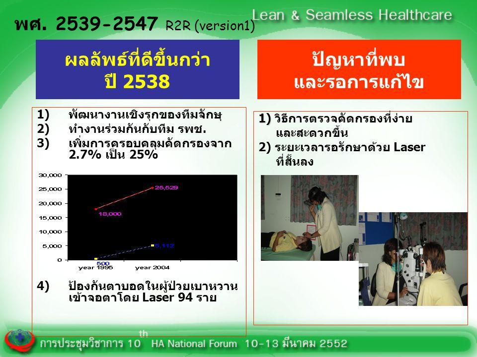 การพัฒนาระบบบริการตรวจคัดกรองเบาหวานเข้าจอตา R2R (version2) พศ.2548-2549 3) ครอบคลุม การคัดกรอง 34% (10,158ราย) LASER 459 ราย (4.8 เท่า) 4)-ศึกษาปัญหา -พัฒนาระบบ ให้ผู้ป่วยได้รับการ รักษาที่เร็วขึ้น หลังตรวจคัดกรอง 1) พัฒนาระบบการ คัดกรอง 2)ใช้กล้องถ่ายภาพจอตาหมุนเวียน 26 รพช.