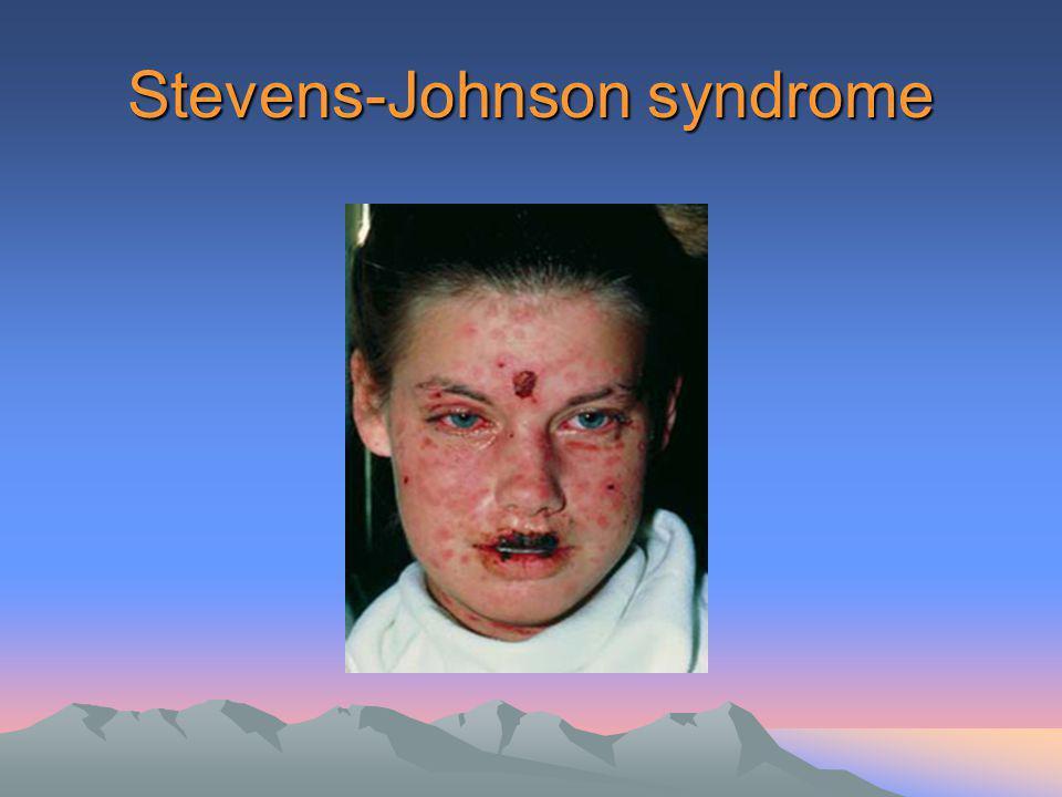 แนวทางการใช้ยา ปฏิชีวนะในโรค ระบบทางเดิน หายใจส่วนบน