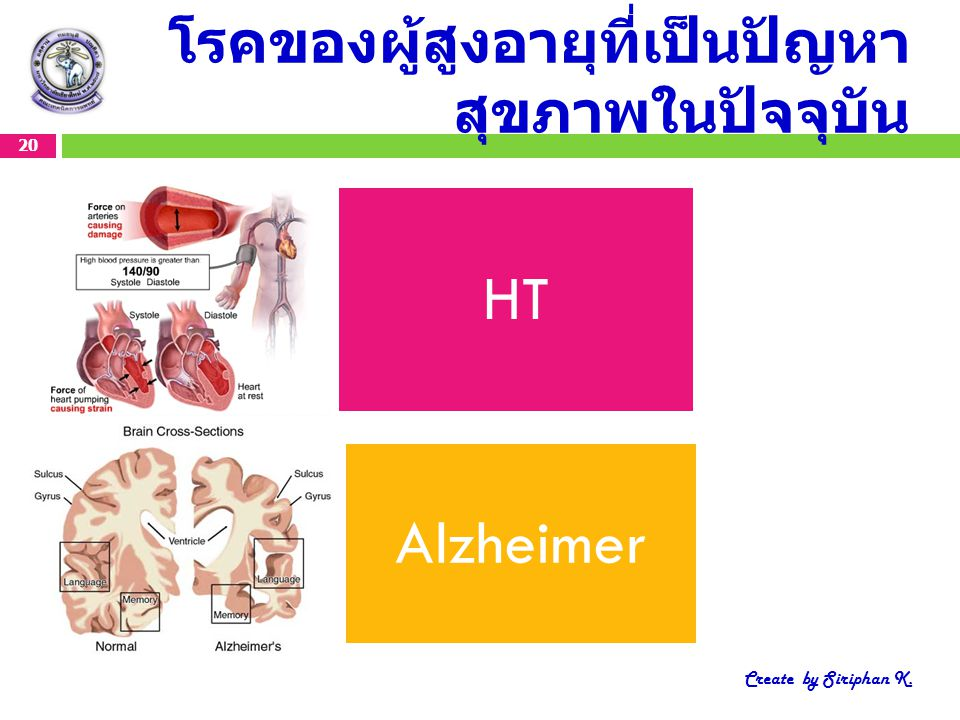 โรคของผู้สูงอายุที่เป็นปัญหา สุขภาพในปัจจุบัน 20 Create by Siriphan K. HT Alzheimer