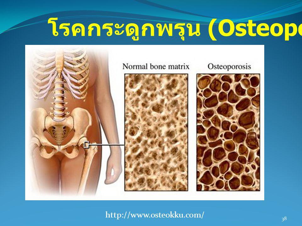 38 http://www.osteokku.com/ โรคกระดูกพรุน (Osteoporosis)