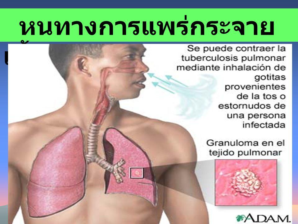 หนทางการแพร่กระจาย เชื้อวัณโรค ผู้ป่วยวัณโรคระยะแพร่เชื้อ การติดต่อโดยการ แพร่กระจายทางอากาศ (Airborne Transmission)