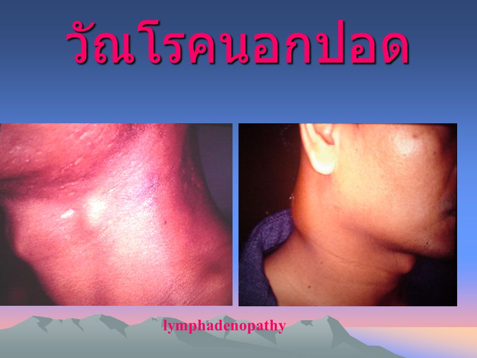 lymphadenopathy วัณโรคนอกปอด