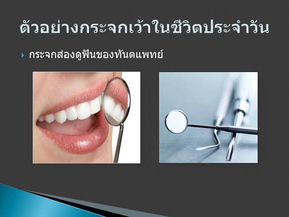  กระจกส่องดูฟันของทันตแพทย์