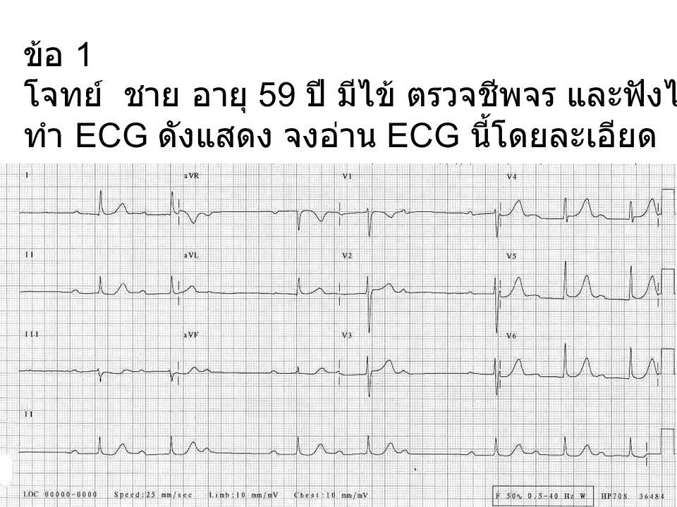 ข้อ 1 โจทย์ ชาย อายุ 59 ปี มีไข้ ตรวจชีพจร และฟังได้หัวใจเต้นไม่ส่ำเสมอ ทำ ECG ดังแสดง จงอ่าน ECG นี้โดยละเอียด