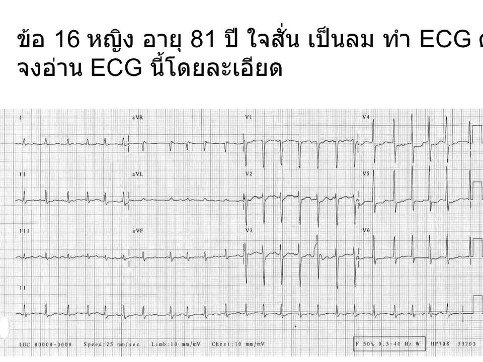 ข้อ 16 หญิง อายุ 81 ปี ใจสั่น เป็นลม ทำ ECG ดังแสดง จงอ่าน ECG นี้โดยละเอียด