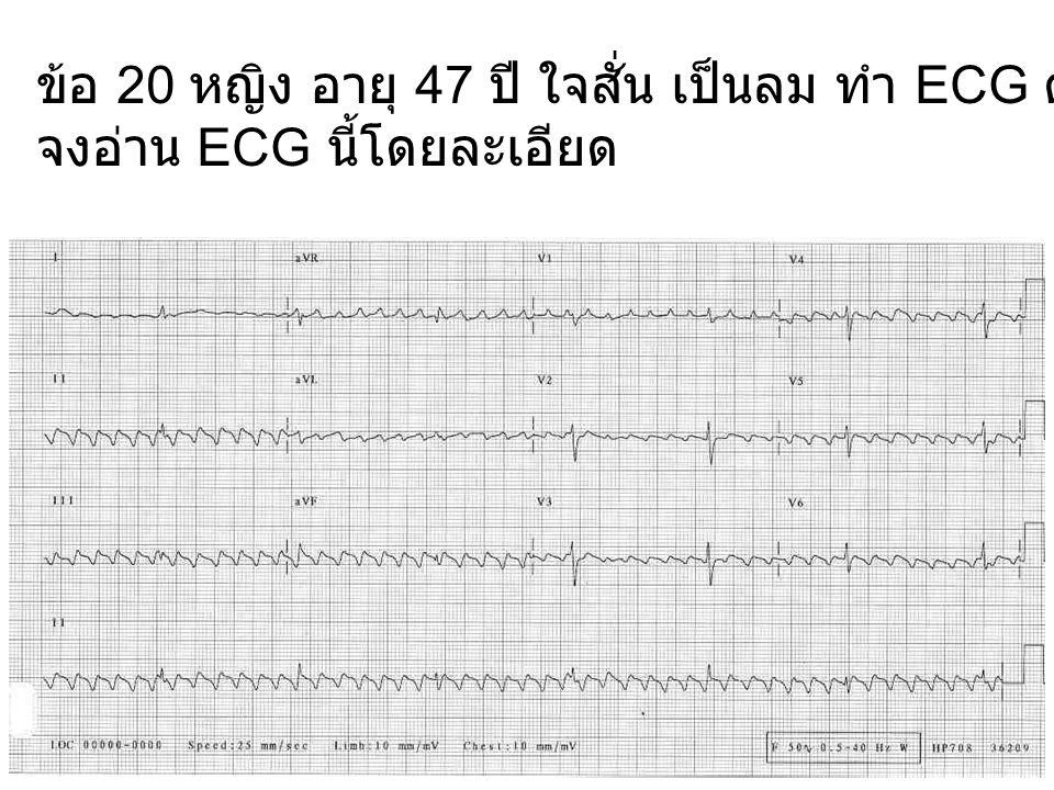 ข้อ 20 หญิง อายุ 47 ปี ใจสั่น เป็นลม ทำ ECG ดังแสดง จงอ่าน ECG นี้โดยละเอียด