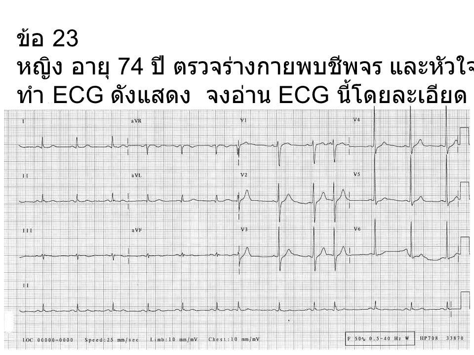 ข้อ 23 หญิง อายุ 74 ปี ตรวจร่างกายพบชีพจร และหัวใจเต้นไม่สม่ำเสมอ ทำ ECG ดังแสดง จงอ่าน ECG นี้โดยละเอียด