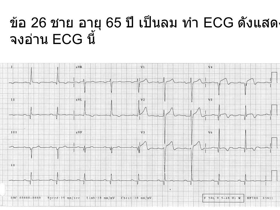 ข้อ 26 ชาย อายุ 65 ปี เป็นลม ทำ ECG ดังแสดง จงอ่าน ECG นี้