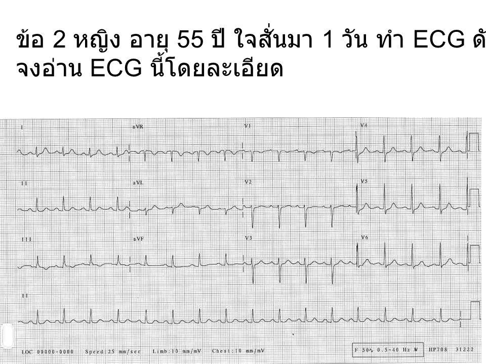 ข้อ 4 ชาย อายุ 54 ปี มาตรวจสุขภาพประจำปี ทำ ECG ดังแสดง จงอ่าน ECG นี้โดยละเอียด