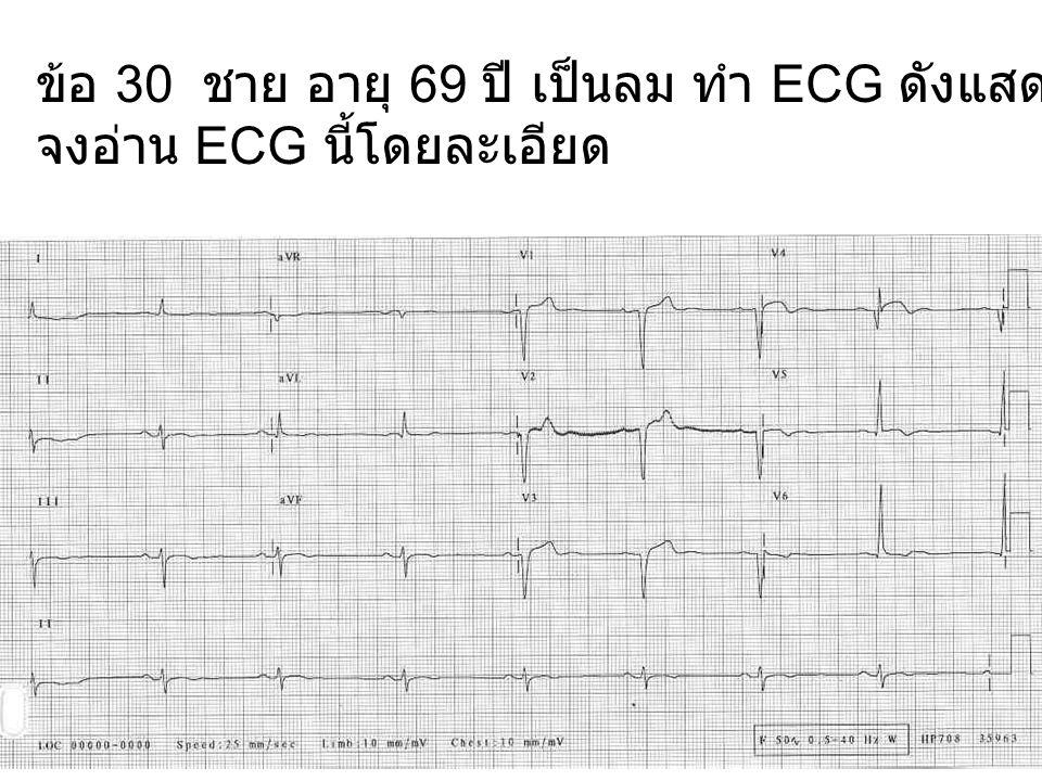ข้อ 30 ชาย อายุ 69 ปี เป็นลม ทำ ECG ดังแสดง จงอ่าน ECG นี้โดยละเอียด