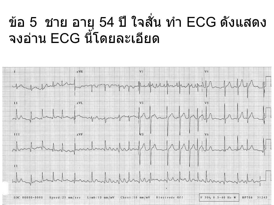 ข้อ 21 หญิง อายุ 36 ปี มีไข้ ตรวจได้ชีพจร และหัวใจเต้นไม่สม่ำเสมอ ทำ ECG ดังแสดง จงอ่าน ECG นี้โดยละเอียด