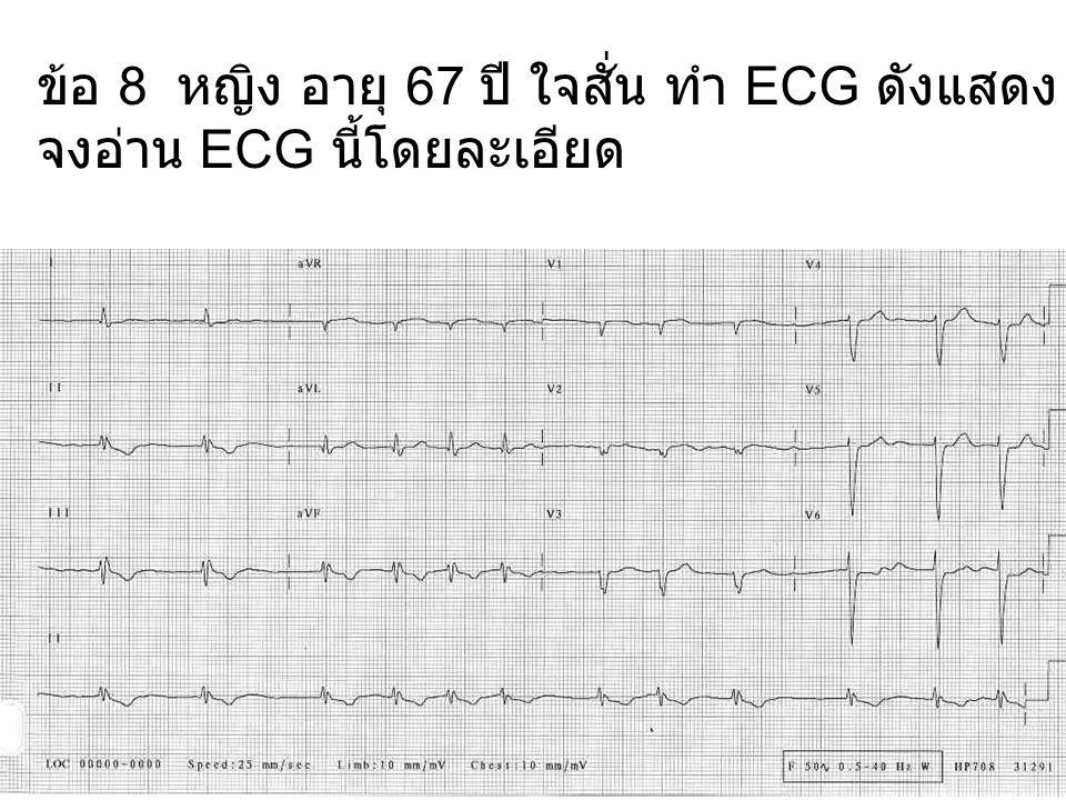ข้อ 10 หญิง อายุ 65 ปี ความดันโลหิตสูง ทำ ECG ดังแสดง จงอ่าน ECG นี้โดยละเอียด