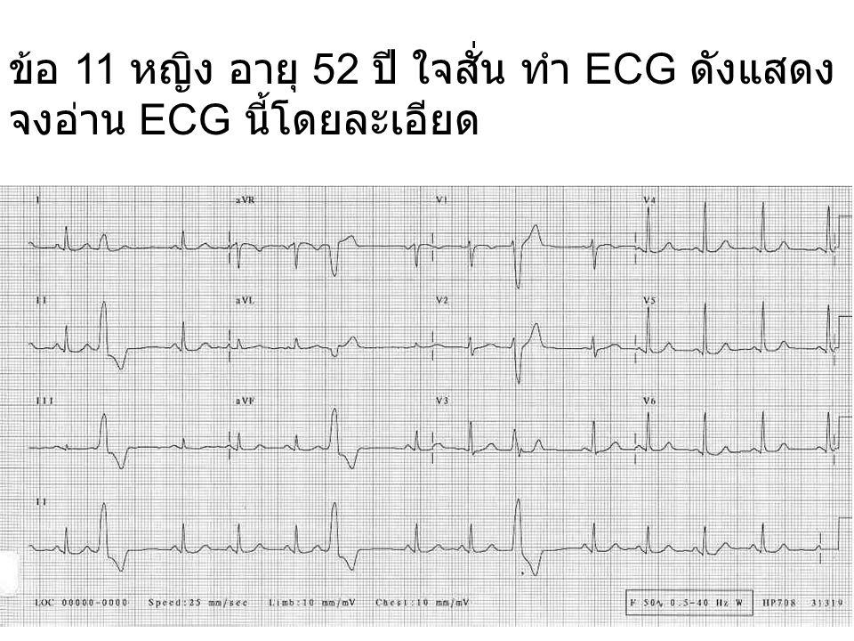 ข้อ 11 หญิง อายุ 52 ปี ใจสั่น ทำ ECG ดังแสดง จงอ่าน ECG นี้โดยละเอียด