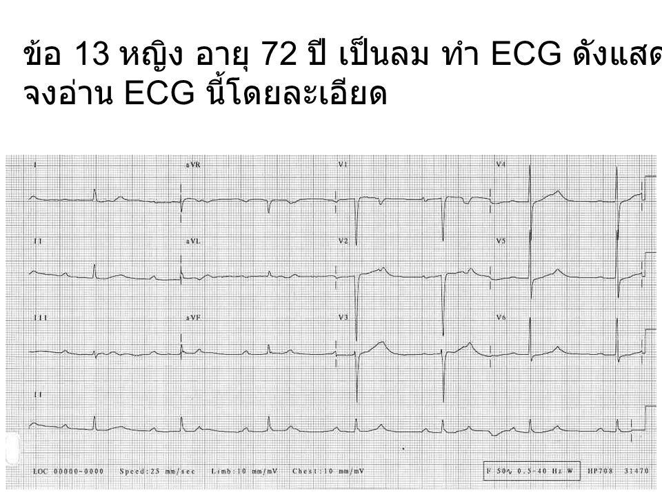 ข้อ 13 หญิง อายุ 72 ปี เป็นลม ทำ ECG ดังแสดง จงอ่าน ECG นี้โดยละเอียด