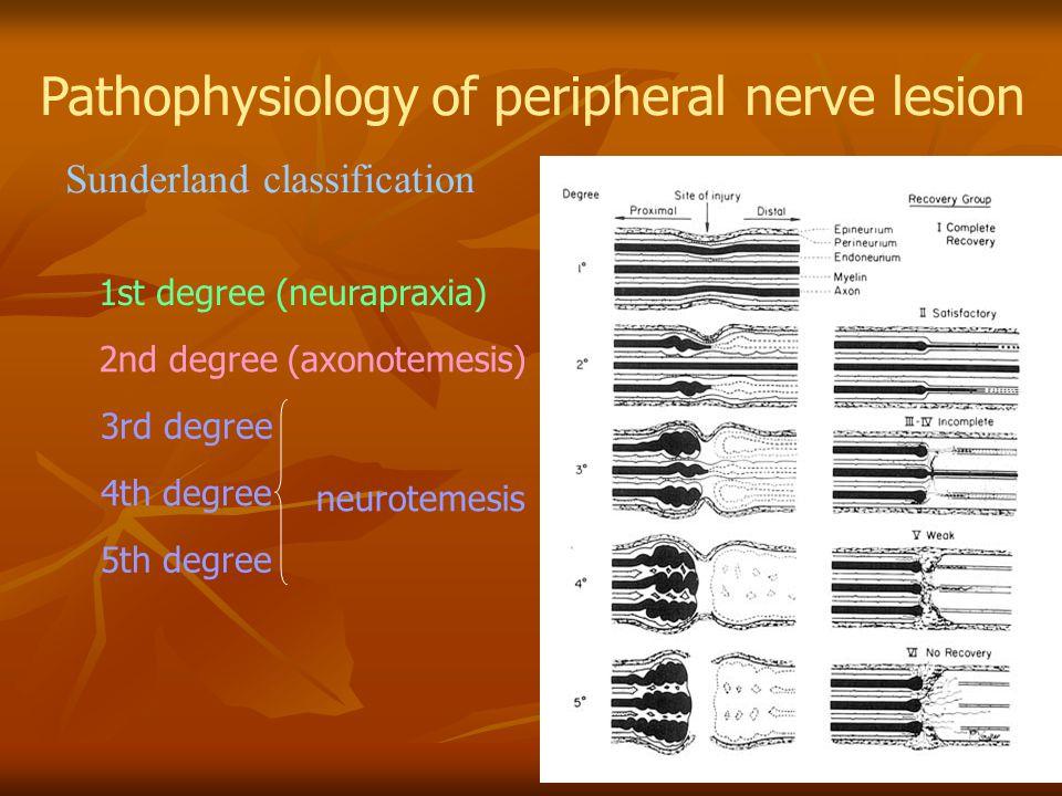 Pathophysiology of peripheral nerve lesion Sunderland classification 1st degree (neurapraxia) 2nd degree (axonotemesis) 3rd degree 4th degree 5th degr