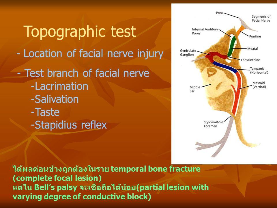 Topographic test - Location of facial nerve injury - Test branch of facial nerve -Lacrimation -Salivation -Taste -Stapidius reflex ได้ผลค่อนข้างถูกต้อ