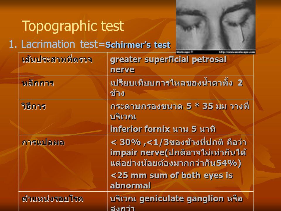 Topographic test Schirmer's test 1. Lacrimation test= Schirmer's test เส้นประสาทที่ตรวจ greater superficial petrosal nerve หลักการ เปรียบเทียบการไหลขอ
