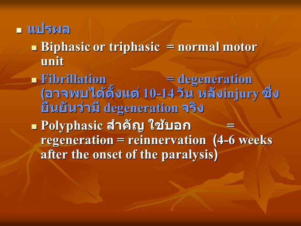 แปรผล แปรผล Biphasic or triphasic = normal motor unit Biphasic or triphasic = normal motor unit Fibrillation = degeneration ( อาจพบได้ตั้งแต่ 10-14 วั
