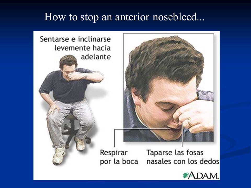 How to stop an anterior nosebleed...