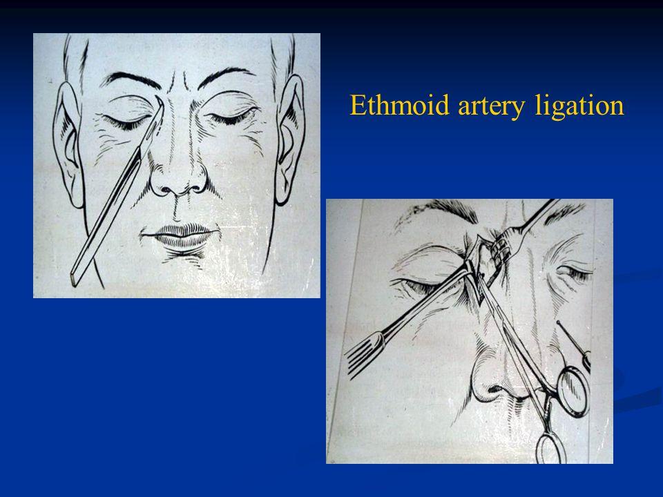 Ethmoid artery ligation