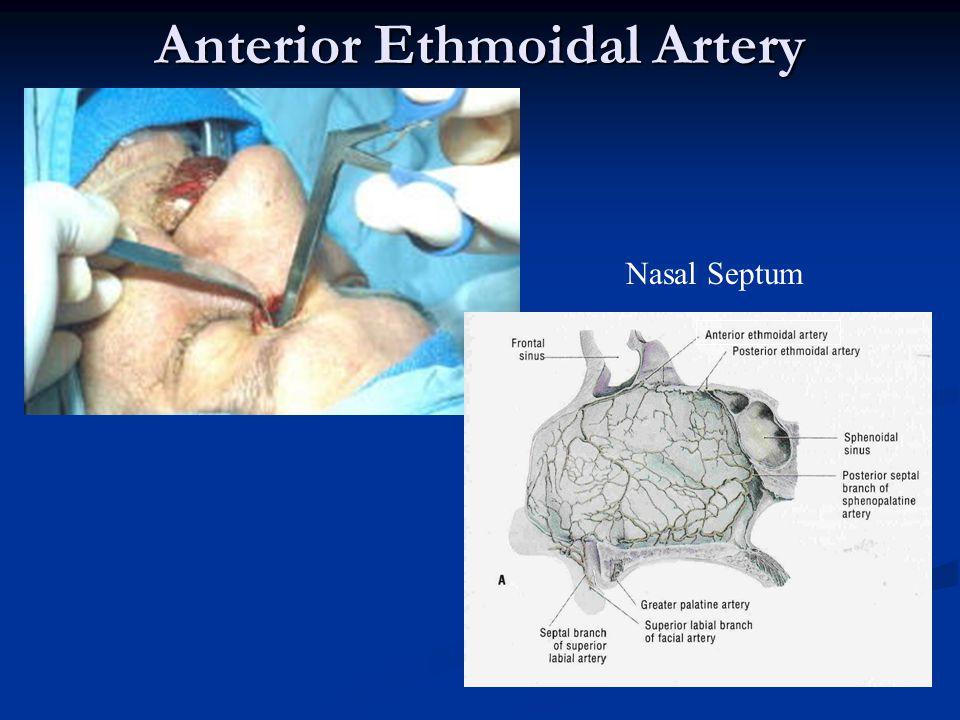 Anterior Ethmoidal Artery Nasal Septum