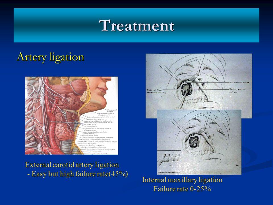 Treatment Artery ligation External carotid artery ligation - Easy but high failure rate(45%) Internal maxillary ligation Failure rate 0-25%