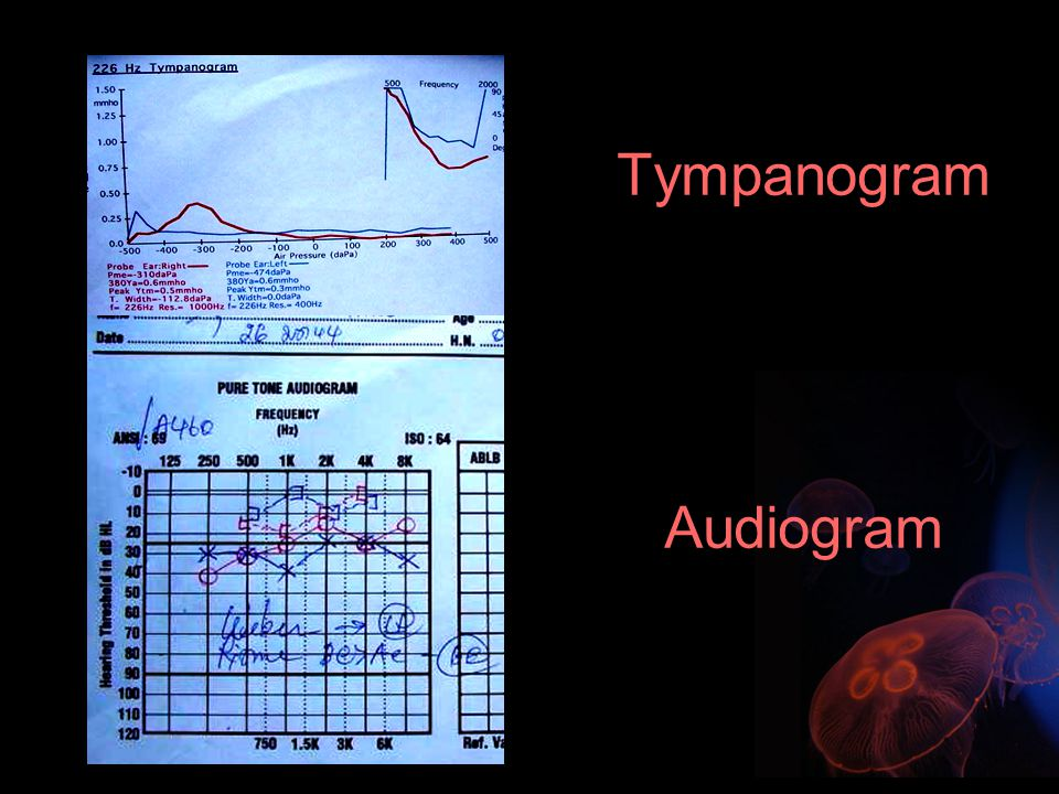 Hearing Assessment subjective method Tympanogram OAE (Otoacoustic Emission) ABR (Auditory Brainstem Respond) Objective method BOA (Behavioral Observation Audiometry) VRA ( Visual Reinforcement) ( 6 ms - 2 yr.) Play Audiometry ( 2 - 5 yr.)