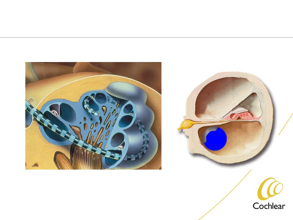 Cochlear Implantation Criteria Profound SNHL Both Ear Age > 2 year No benefit from Hearing Aids following 6 month trial Earlier implantation in cases of meningitis Action : directly stimulate auditory Nerve fiber within cochlea