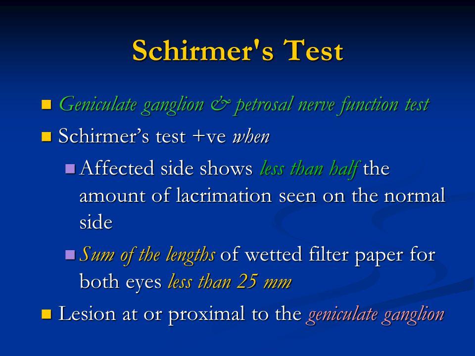 Schirmer's Test Geniculate ganglion & petrosal nerve function test Geniculate ganglion & petrosal nerve function test Schirmer's test +ve when Schirme