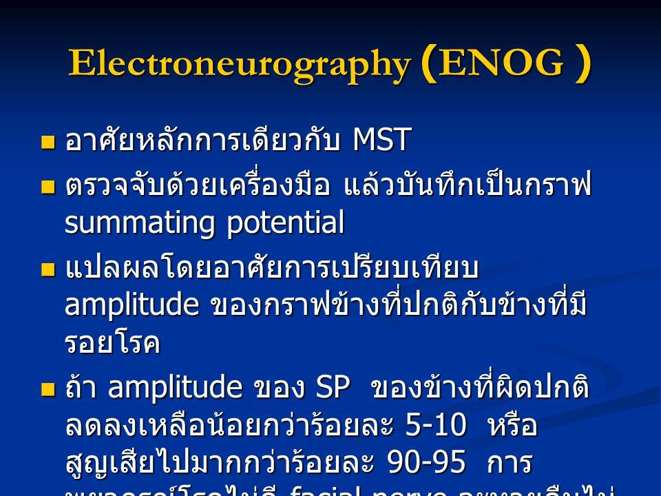Electroneurography (ENOG ) อาศัยหลักการเดียวกับ MST อาศัยหลักการเดียวกับ MST ตรวจจับด้วยเครื่องมือ แล้วบันทึกเป็นกราฟ summating potential ตรวจจับด้วยเ