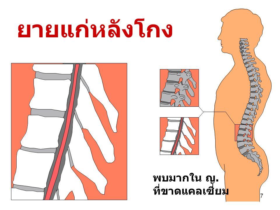6 ๒. ระบบ กระดูก ต้องรับน้ำหนัก แรงกด แรงบิด แรงดัด จึงไม่ผุ แข็งแรง เก็บ แคลเซี่ยม ต้องสะสมมา ตั้งแต่อายุ น้อย