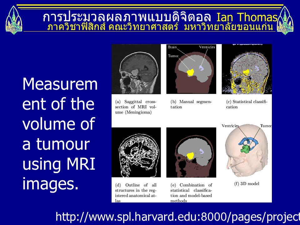 การประมวลผลภาพแบบดิจิตอล Ian Thomas ภาควิชาฟิสิกส์ คณะวิทยาศาสตร์ มหาวิทยาลัยขอนแก่น http://www.spl.harvard.edu:8000/pages/projects/tumorSegmentation/