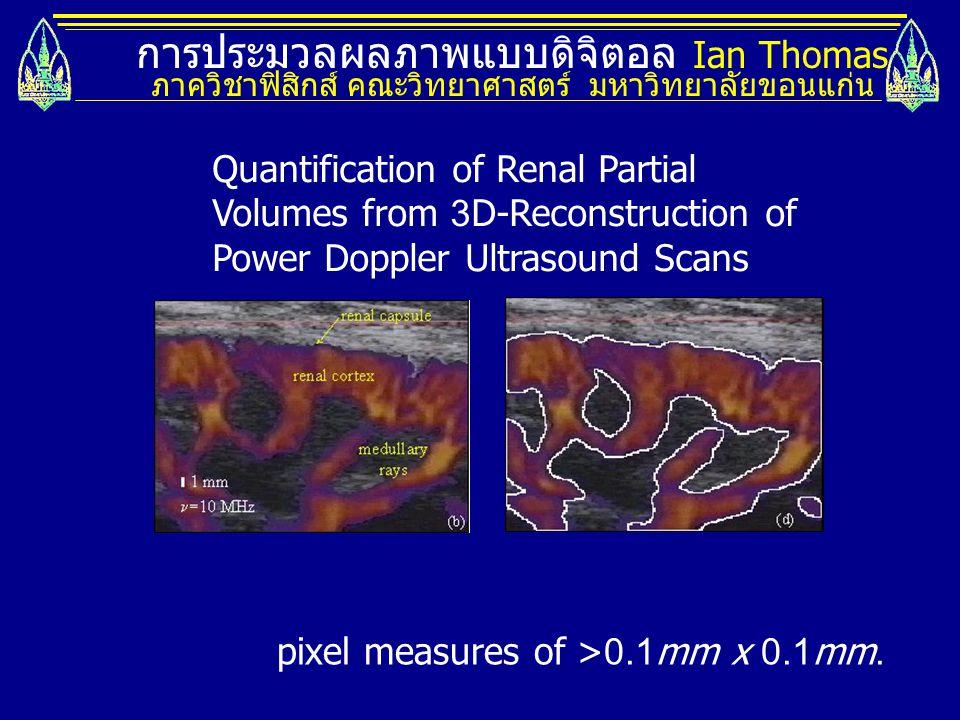 การประมวลผลภาพแบบดิจิตอล Ian Thomas ภาควิชาฟิสิกส์ คณะวิทยาศาสตร์ มหาวิทยาลัยขอนแก่น Quantification of Renal Partial Volumes from 3D-Reconstruction of
