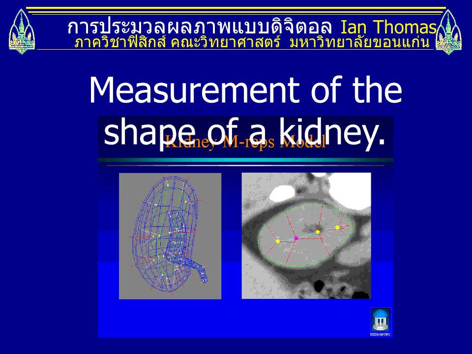 การประมวลผลภาพแบบดิจิตอล Ian Thomas ภาควิชาฟิสิกส์ คณะวิทยาศาสตร์ มหาวิทยาลัยขอนแก่น Measurement of the shape of a kidney.