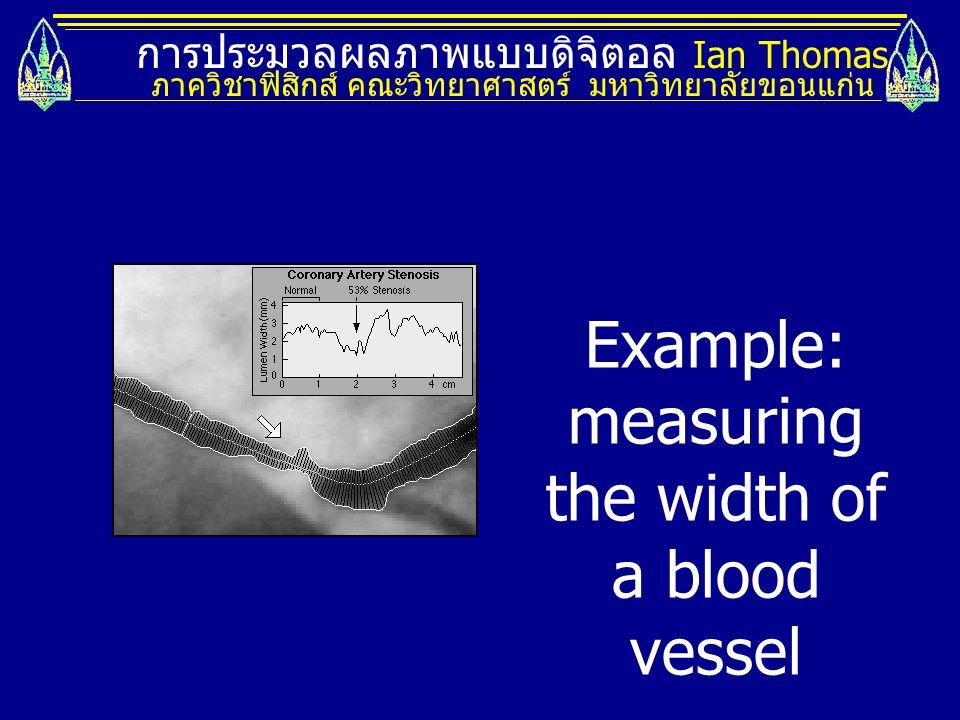 การประมวลผลภาพแบบดิจิตอล Ian Thomas ภาควิชาฟิสิกส์ คณะวิทยาศาสตร์ มหาวิทยาลัยขอนแก่น Example: measuring the width of a blood vessel